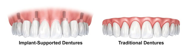 dentures_vs_implant_supported2